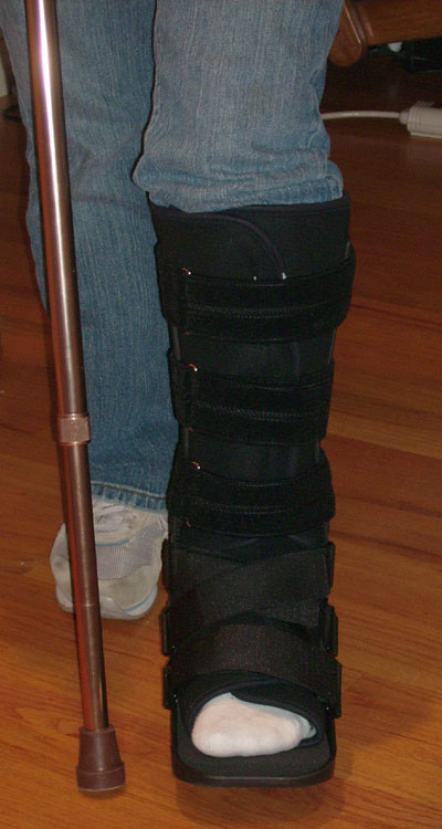 Fracture Ankle Boot